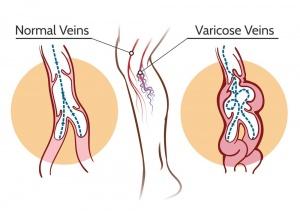 laser treatment for varicose veins in nashik | Saru hospital